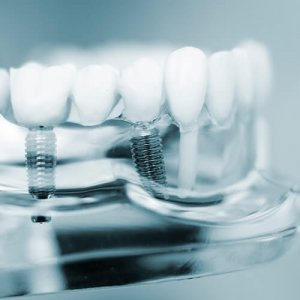 Dental implants initial consultation at Dental Pods
