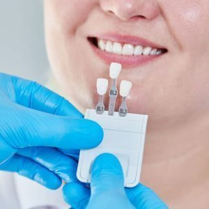 Dental whitening at Dental Pods